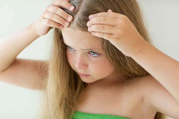 Что делать, если у ребенка появилась себорея