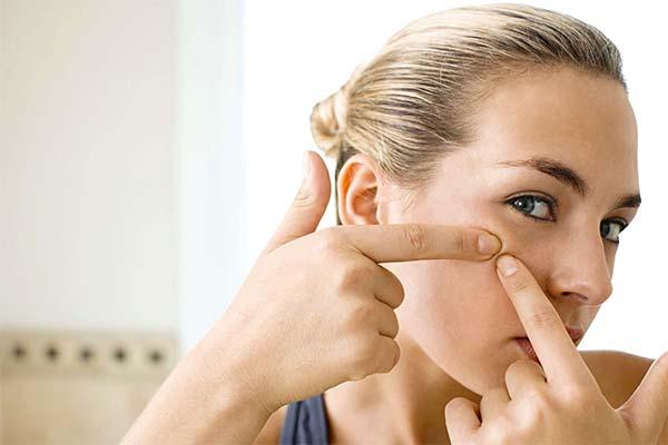 Как избавиться от прыщей на лице