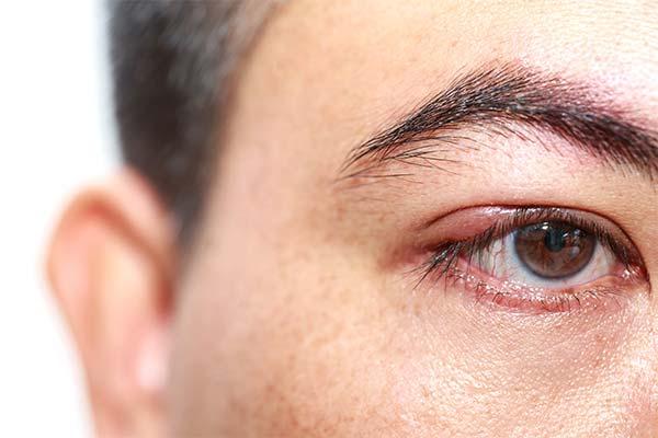 Как предотвратить появление ячменя на глазу