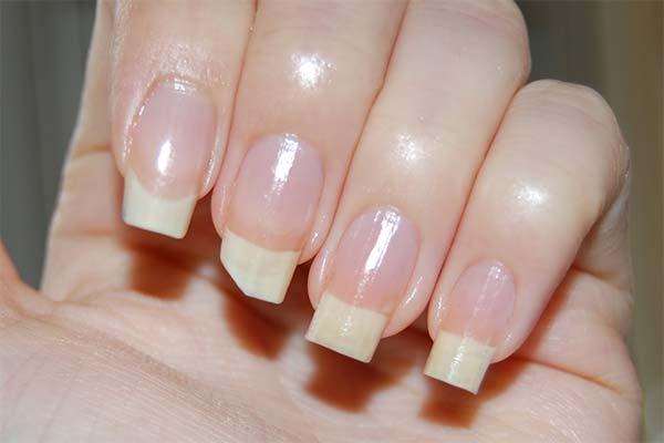 Как ускорить рост сломанного ногтя