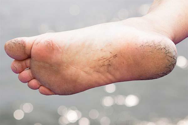Заболевания организма, при которых появляются трещины на пятках