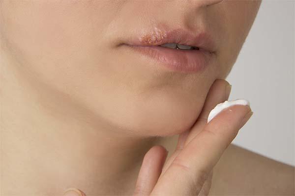 Чем мазать простуду на губе