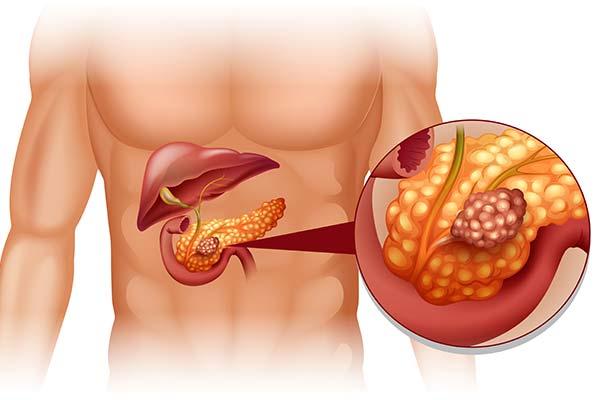 Опасность панкреатита