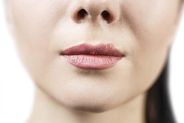 Профилактика герпеса губ